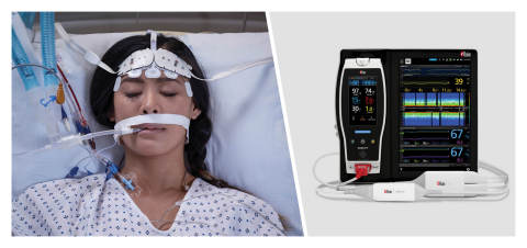 Masimo Root®搭配O3®局部氧饱和度仪和SedLine®脑功能监护仪(图示:美国商业资讯)