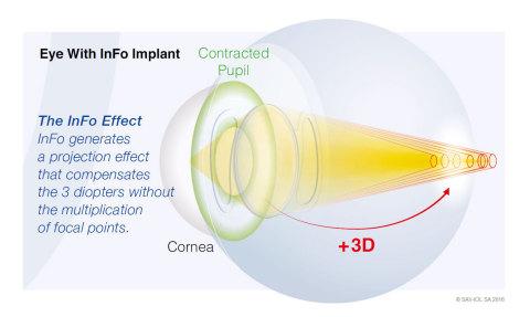 瑞士SAV-IOL开发的新款人工晶状体InFo上市(图示:美国商业资讯)